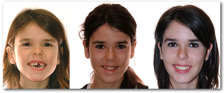 Sourire  orthodontie AD 023263 S orthoLemay.com Sherbrooke