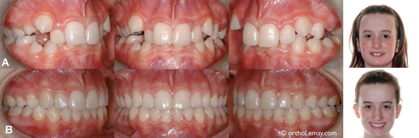 Traitement de malocclusions dentaires avec manque d 39 espace for Bagues dentaires interieur