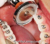 Meulage sélectif, disking, polissage interproximal ou diksing fait entre les dents pour procurer de l'espace pour aligner les dents en orthodontie