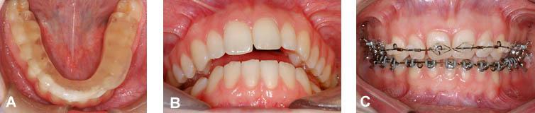 (A) Plaque articulaire utilisée sur la mâchoire inférieure. (B) Après l'utilisation de la plaque, il n'y a presque plus de contacts entre les dents mais la patiente est confortable. (C) L'orthodontie (broches) permet de replacer les dents.
