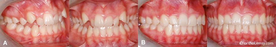 Béance postérieure, malocclusion corrigée en orthodontie.