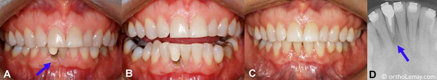 Extraction d'une incisive sévèrement endommagée et traitement d'orthodontie.