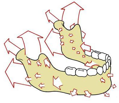 La croissance mandibulaire est un phénomène complexe qui se produit en 3 dimensions jusqu'à la fin de l'adolescence.