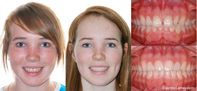 sourire orthodontie sherbrooke laterales elargies CL1 113218 VM14