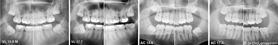Wisdom teeth dents sagesse orthodontiste Lemay VL AC