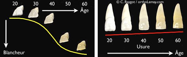 Usure dentaire et changement de couleur avec le temps.