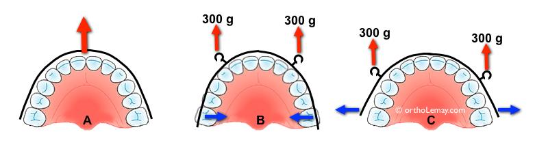 Position des crochets de traction sur l'arc maxillaire labial sur un appareil de traction extra-orale delaire et les effets sur les molaires