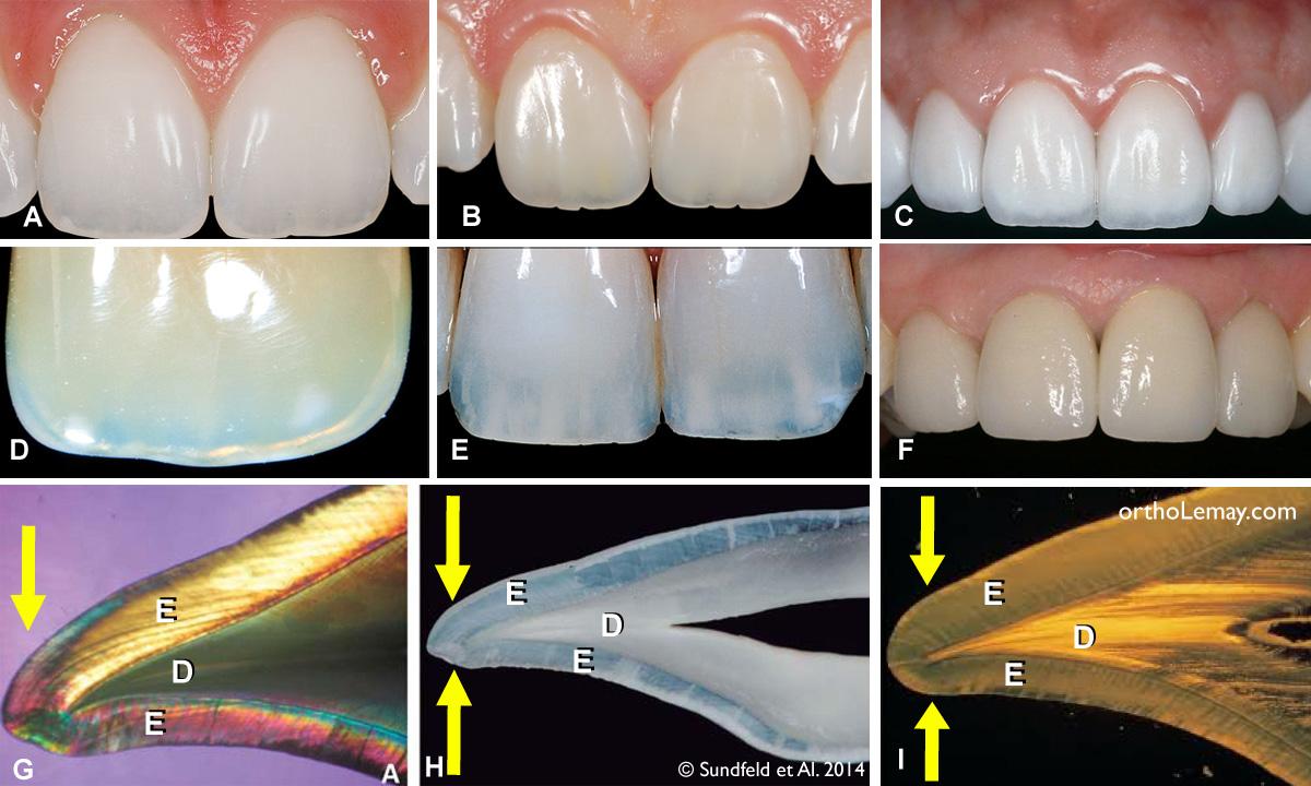 La translucidité ou transparence du bord incisif des dents est causé par l'émail dentaire et est un phénomène naturel et normal.