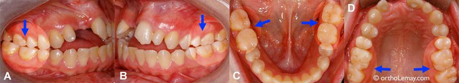 comment arreter de grincer des dents