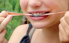 Le xylitol est un sucre ayant des propriétés anti caries dentaires (anticariogène) et est présent dans la gomme à mâcher, mais ne présente pas d'avantage en orthodontie. Orthodontiste Lemay Sherbrooke orthodontie orthosherbrooke orthoLemay.com orthodentie orthodentiste orthodontist