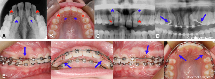 Impacted Cuspid Orthodontics Sherbrooke 093242 Vb13a