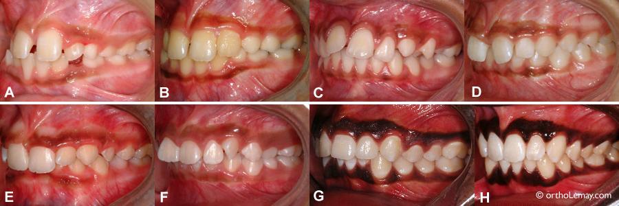 Dentition normale et occlusion normale orthodontiste for Interieur de la bouche
