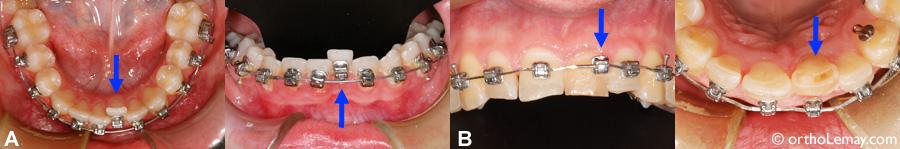 Lastiques et composantes des appareils orthodontiques for Bagues dentaires interieur