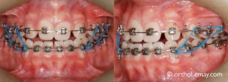 Élastique orthodontique vertical