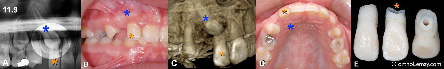 Sévère résorption radiculaire d'incisive latérale supérieure causée par une position ectopique d'une canine incluse chez une fille de 11 ans.