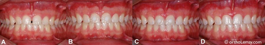 Fermeture d'un espace entre les dents supérieures en orthodontie