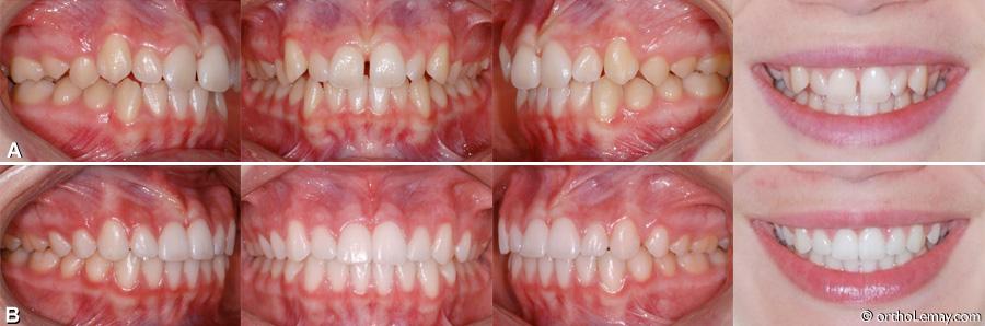 Classe I, Classe 1 malocclusion dentaire traitée en orthodontie. Fermeture de diastème.