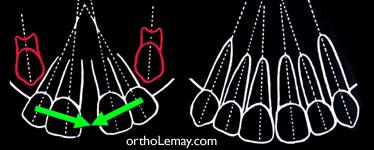 Les canines suivent les racines des latérales dans leur parcours d'éruption et peuvent fermer l'espace entre les centrales. Il est préférable d'attendre la sortie des canines avant d'envisager une frénectomie labiale en présence d'un diastème. (Broadbent 1937)