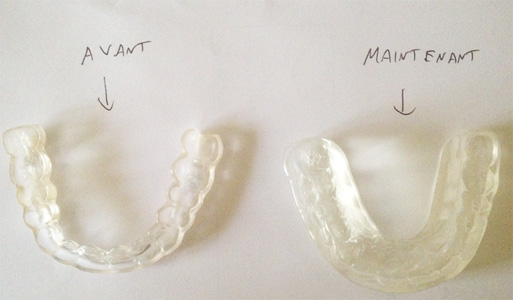 Plaque occlusale ou gouttière utilisée pour le bruxisme et serrement de dents en dentisterie.