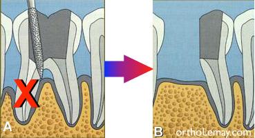 Hémisection d'une racine de molaire endommagée pour préserver l'autre racine intacte afin de faire un pont.