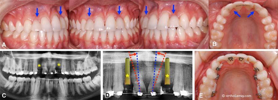 implants dentaires orthodontiste sherbrooke. Black Bedroom Furniture Sets. Home Design Ideas