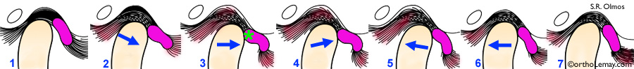 Craquement à l'articulation temporo-mandibulaire (ATM) sans réduction du disque articulaire.