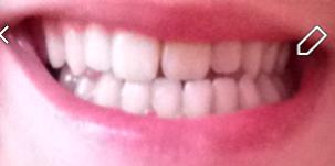 Déficience maxilllaire, asymétrie squelettique, occlusion croisée, crsoo bite