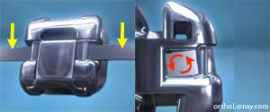 Fil carré dans un bracket orthodontique Damon Q