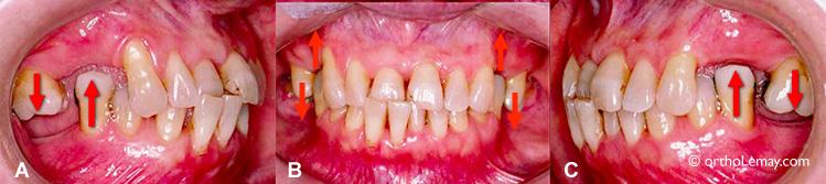 Extraction de dents et déplacement dentaires résultants.