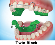 Appareil orthodontique twin block