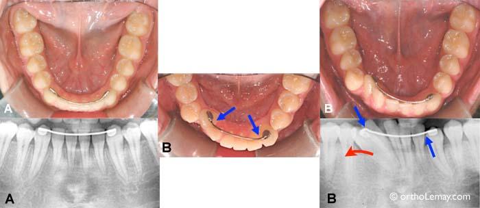 Relapse orthodontique pendant la rétention