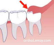 opercule dentaire recouvrant une dent de sagesse incluse et causant de l'inflammation et autres problèmes.