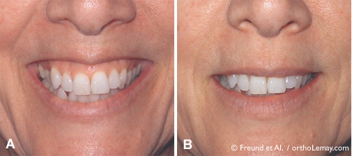 Botox-sourire-gingival-smile--orthodontie- levres-sherbrooke-