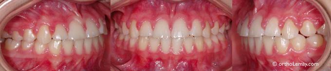 Hyperplaise gingivale suite à un traitementd'orthodontie