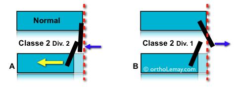 Correction orthodontique d'uen classe 2 division 2 avec compromis