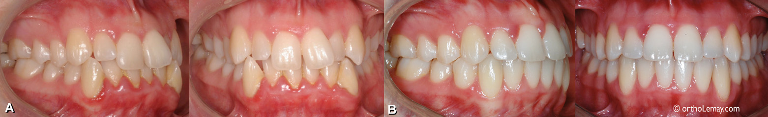 Malocclusion classe I chez une femme de 22 ans avec chevauchement dentaire et arcades étroites