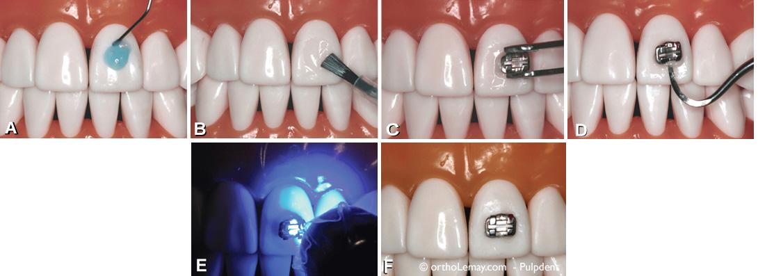 Principales étapes de pose d'un boîtier orthodontique illustré sur un modèle.