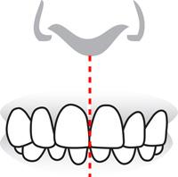 alignement de la ligne médiane dentaire