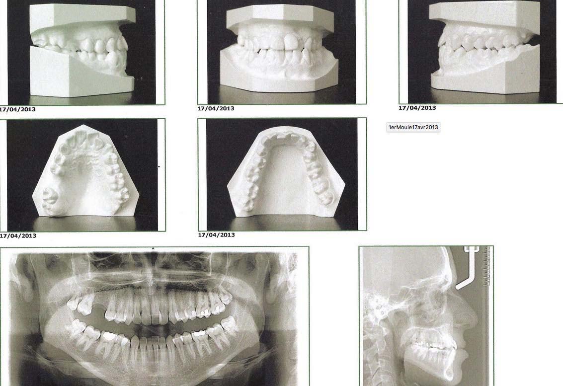 Extraction molaire et fermeture d'espace en orthodontie.