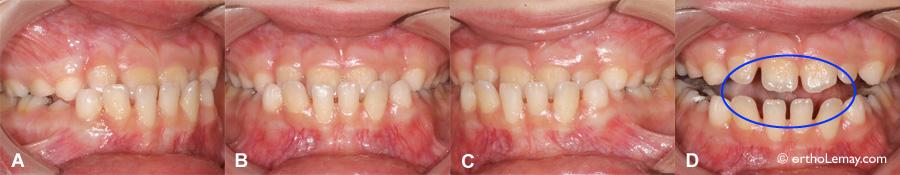 Occlusion croisée antérieure avec composante fonctionnelle et déviation mandibulaire.