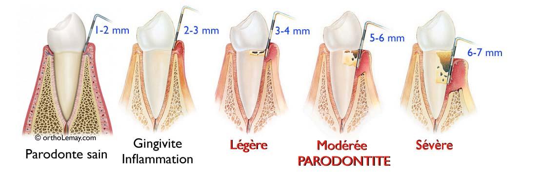 Le sondage parodontal permet d'évaluer la santé du parodonte (os et gencive) entourant les dents.