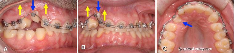 Ankylose dentaire sur une canine permanente pendant un traitement d'orthodontie. L'arcade dentaire devient toute déformée.