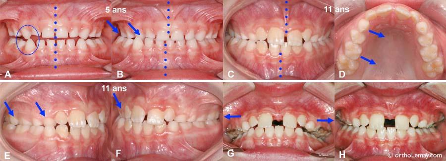 Une occlusion croisée et déviation mandibulaire ne se corrigeront pas avec la croissance sans correction orthodontique.