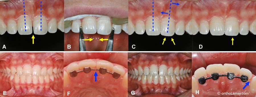 diasteme fermeture espace pince orthodontie 103258 RB16