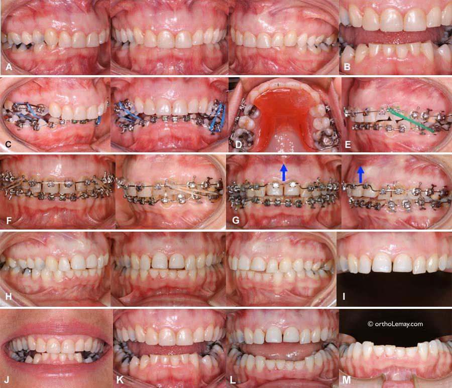 Traitement d'orthodontie inter-disciplinaire adulte ayant eu une usure importante nécessitant des couronnes après le traitement.