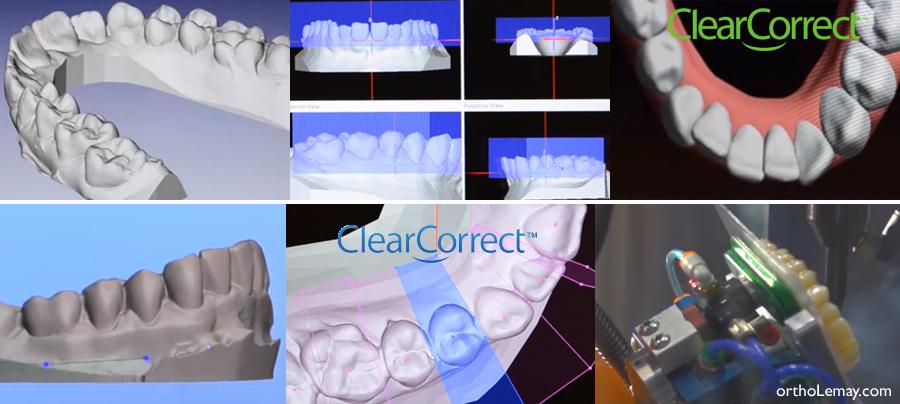 Fabrication des aligneurs invisibles ClearCorrect, alternative à Invisalign.