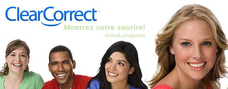 ClearCorrect aligneurs transparents et orthodontie et brohes invisible. Montrez votre sourire.