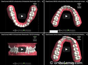 Simulation virtuelle de traitements avec gouttières transparentes ClearCorrect, similaire à Invisalign