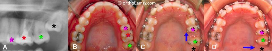 Extraction d'une olaire endommagée et fermeture de l'espace d'extraction en orthodontie.