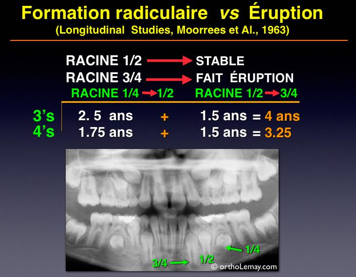 Étude de Moorees et Fanning (1963) expliquant que le degré de formation radiculaire des dents permanentes détermine le moment opportun pour l'extraction sélective d'une dent temporaire.